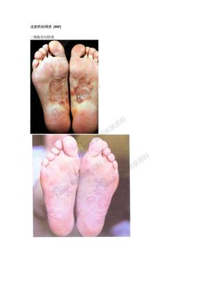 皮肤病皮肤性病图谱_[88P].doc