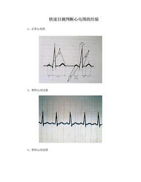 快速目测心电图的经验.doc