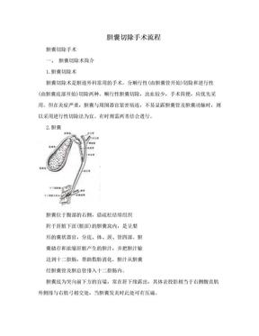 胆囊切除手术流程.doc