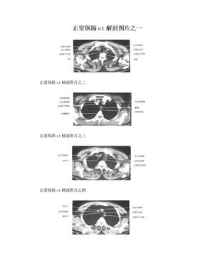 正常纵隔ct解剖图片之一.doc