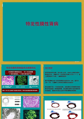 膜性肾病-科室讲座  ppt课件.ppt