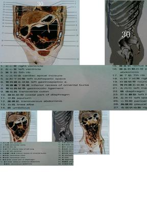 人体断面解剖图谱09-腹部冠状断面.ppt