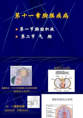 胸膜疾病.ppt