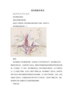 颈内静脉穿刺术.doc