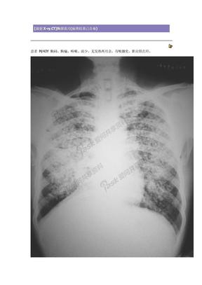 放射X CT 肺泡癌.doc