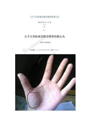 左手大鱼际就是随身携带的救心丸.docx
