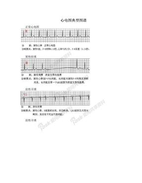 心电图典型图谱.doc