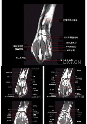 腕关节正常MRI解剖图谱.ppt