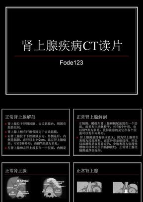 肾上腺疾病CT读片.ppt