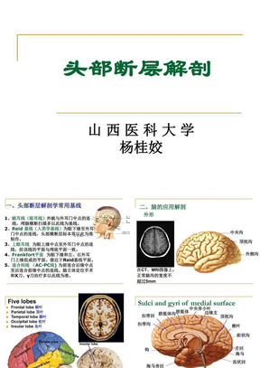 头部断层解剖学.ppt