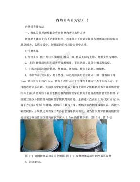 内热针布针方法(一).doc