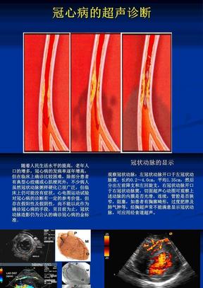 5_6冠心病的超声诊断.ppt