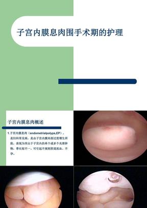 子宫内膜息肉围手术期护理.ppt