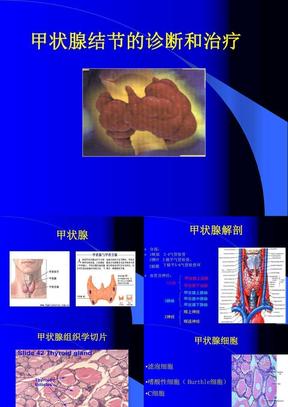 甲状腺结节的诊断和治疗.ppt
