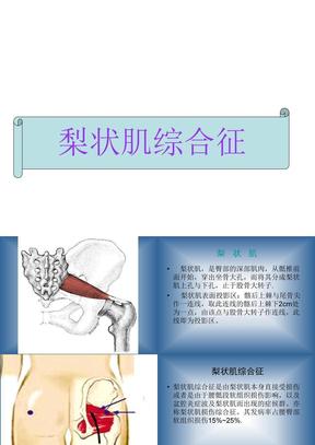 梨状肌综合征分析课件.ppt