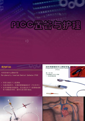 PICC置管与护理.ppt