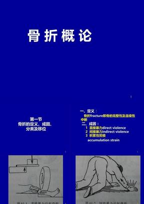 骨科总论PPT医学课件.ppt