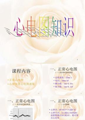 心电图基础知识PPT课件(完).ppt