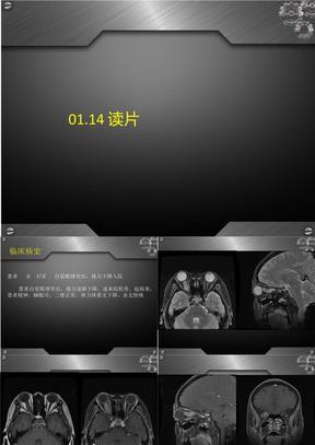 视神经脑膜瘤.ppt
