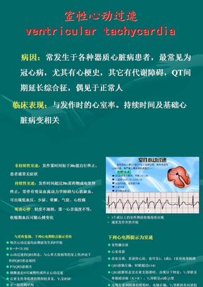 心律失常的诊断治疗3.PPT