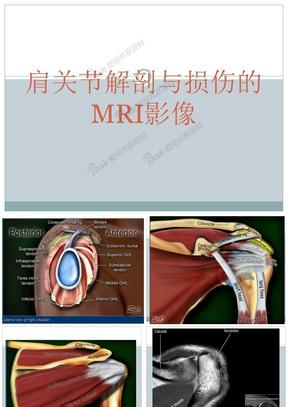 肩关节损伤MRI诊断.ppt