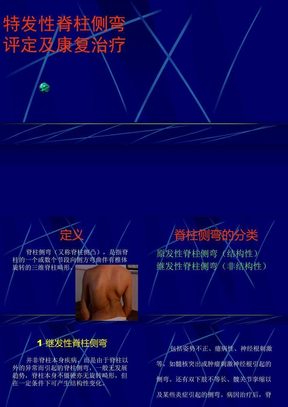 特发性脊柱侧弯评定及康复治疗.ppt