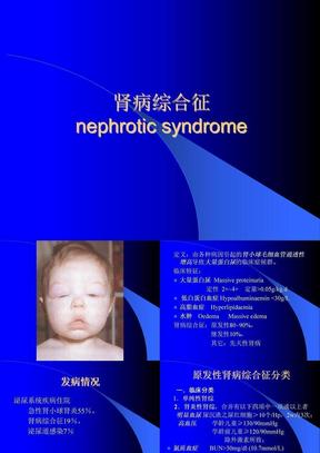 肾病综合征080119sbz
